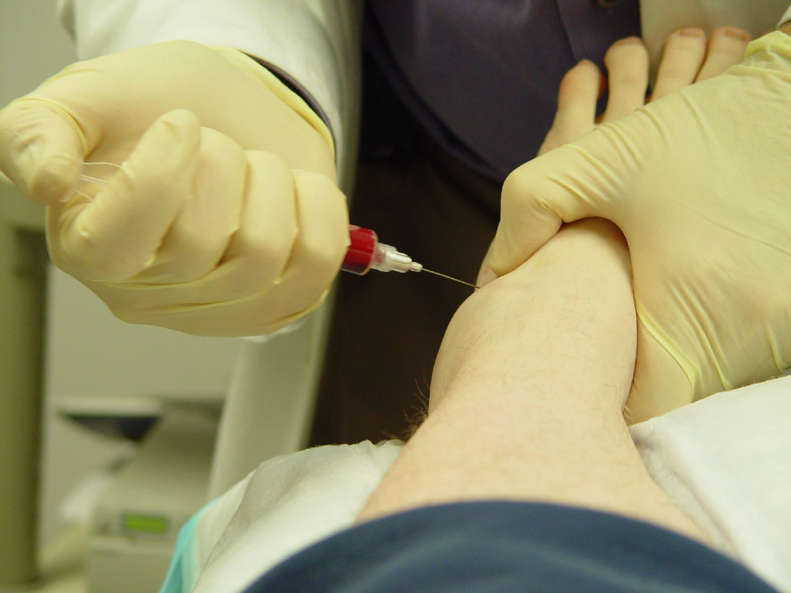 5 Reasons to Use PRP Treatment
