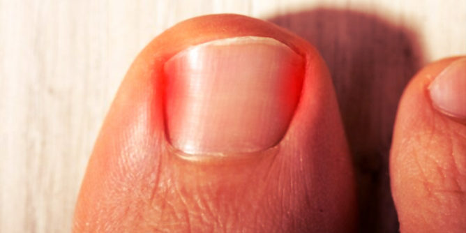 ingrown toenail relief in Houston