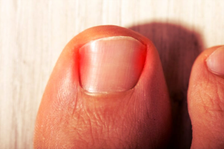 The Right Treatment for Ingrown Toenail Relief in Houston