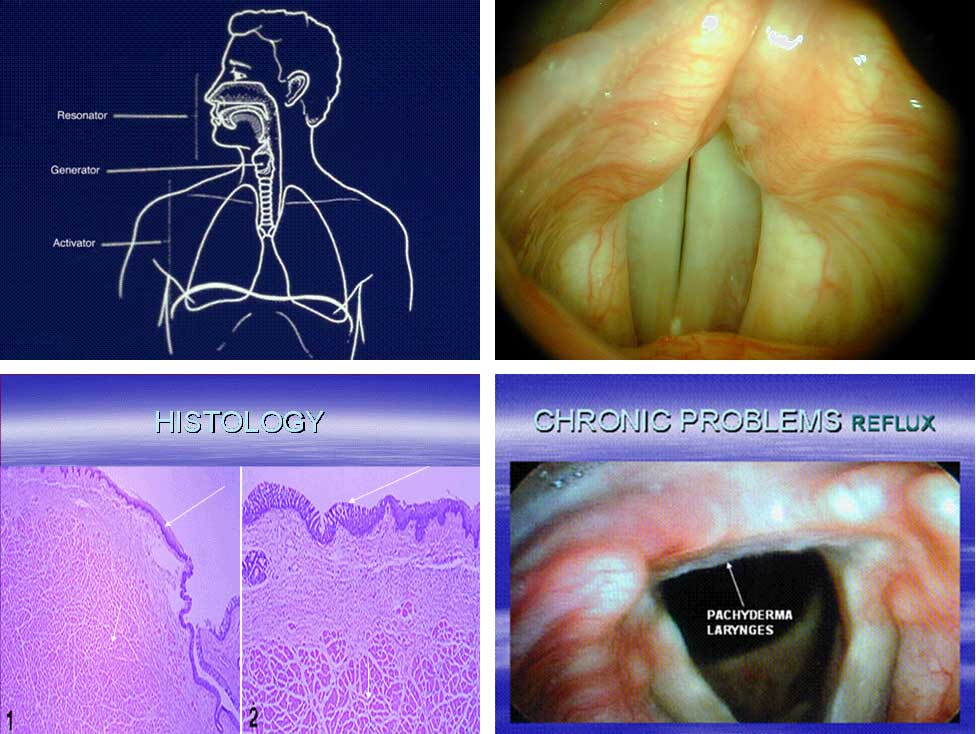 Adenoid Cystic and Its Treatment by Doctors at Alpha Surgical Group