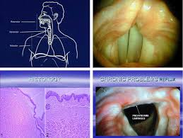 Adenoid cystic-Symptoms and Treatments