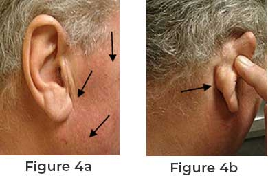Basic Things to Know About Parotid Surgery